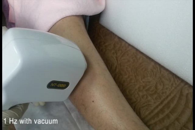 808nm diode laser hair removal treatment