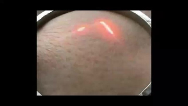 Acne Scar Removal Fractional Co2 Laser Machine thumbnail image