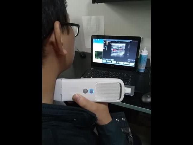 QSONO Wireless probe